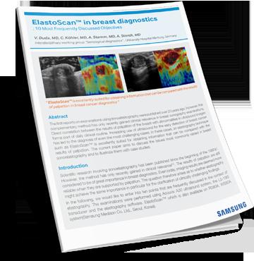 Download ElastoScan White Paper