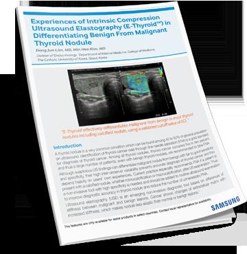 Download Intrinsic Compression White Paper