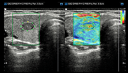 Intrinsic compression ultrasound elastography