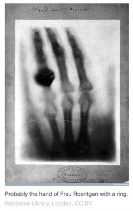 hand-ring-xray