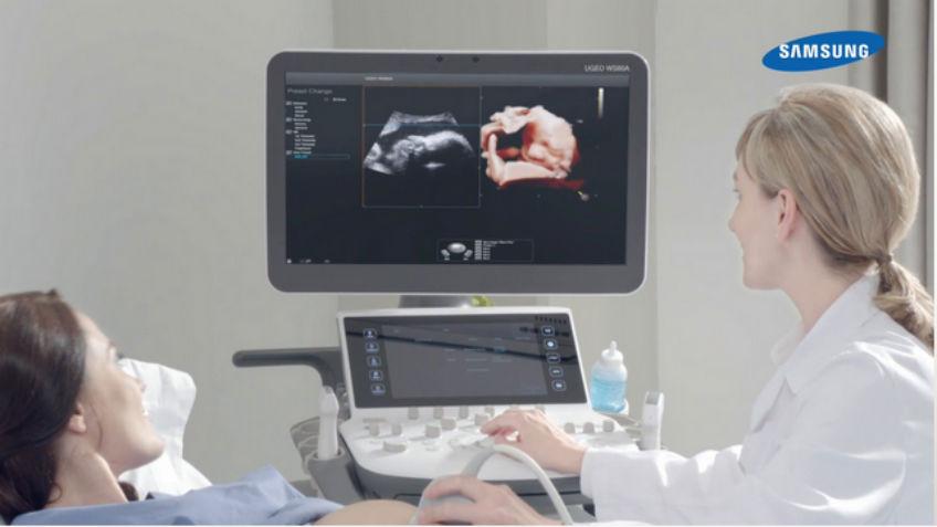 Samsung Acquires Neurologica