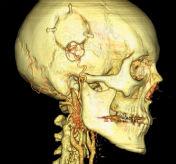 CereTom Neuro Images