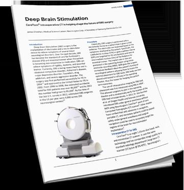 Download the Deep Brain Stimulation White Paper