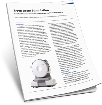 Download the Deep Brain Stimulation White Paper