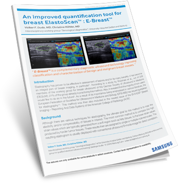 An improved quantification tool for breast ElastoScan™: E-Breast™