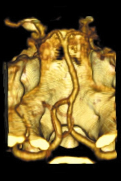 CTA Basal Ganglia