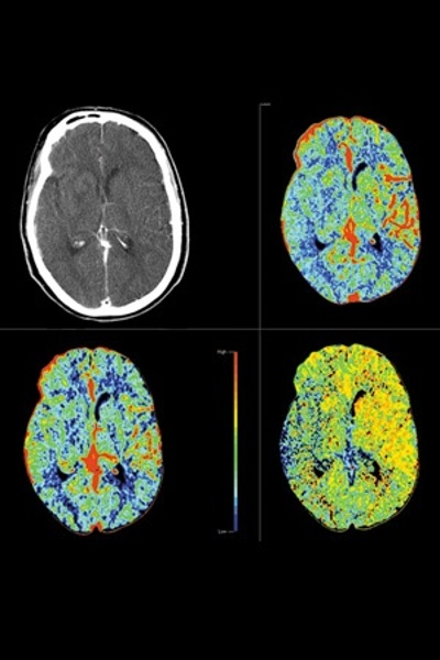 Perfusion Color Maps