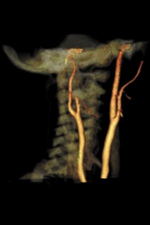 CTA Carotid Arteries