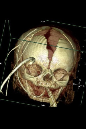 3D Ventilated Neonate