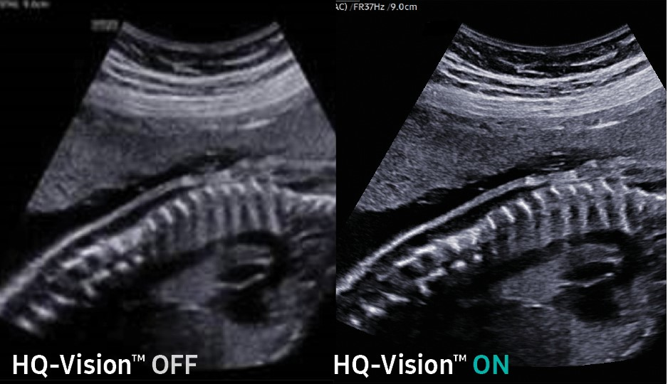Fetal Spine with HQ-Vision Off & On