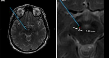 Electrode Placement Accuracy in Robot-Assisted Asleep Deep Brain Stimulation