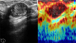 ElastoScan in breast diagnostics
