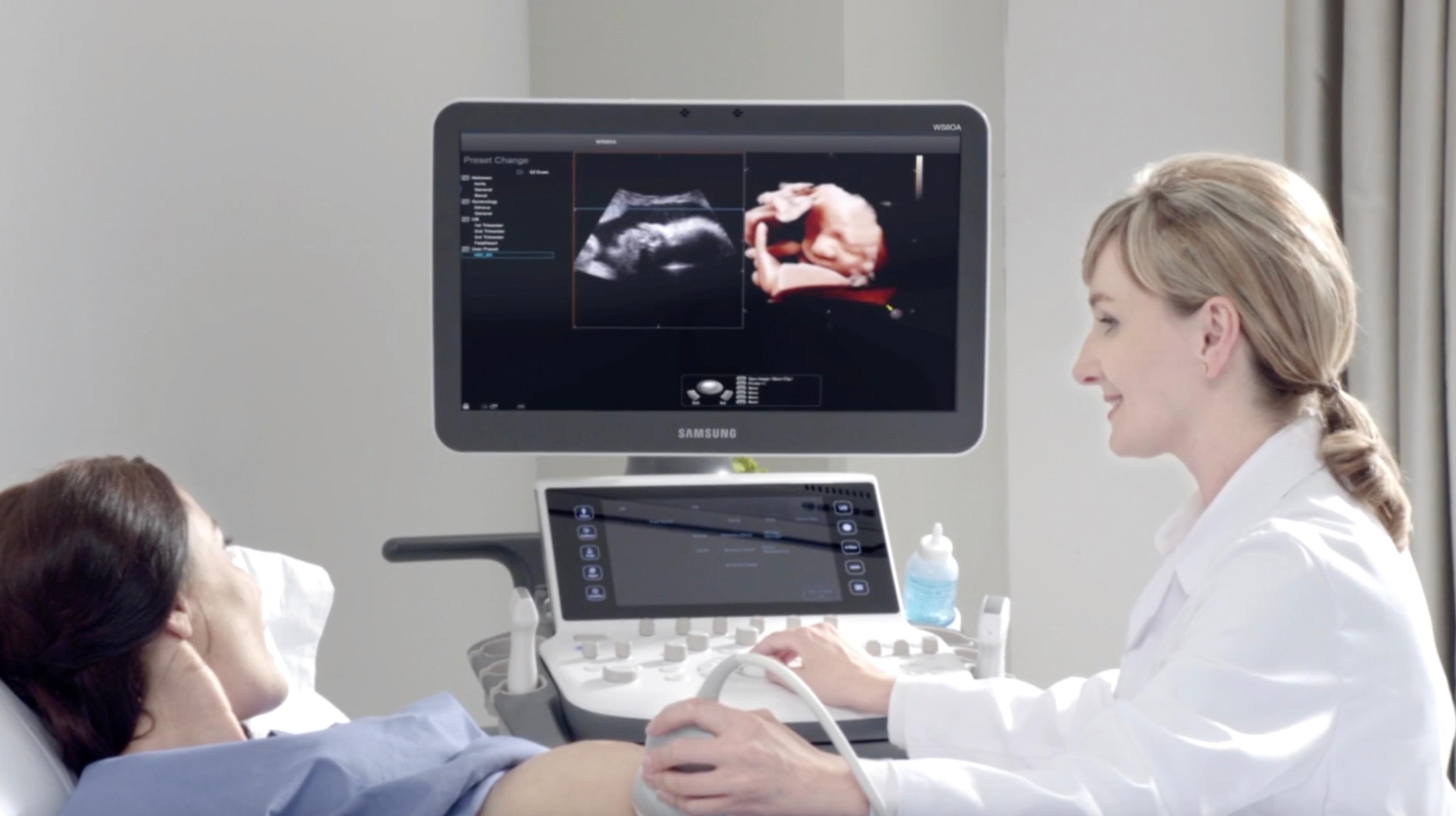 Samsung Healthcare Ultrasound Video
